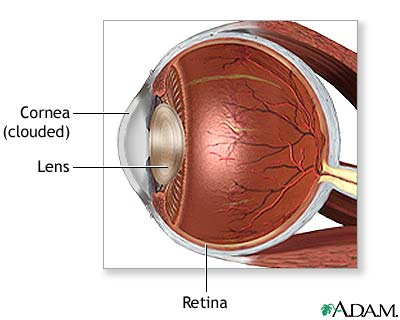 Keratoconus & Corneal Problems